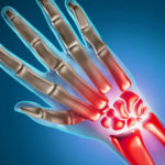Rheumatoid Arthritis Biosimilars: Regulatory and Clinical Considerations