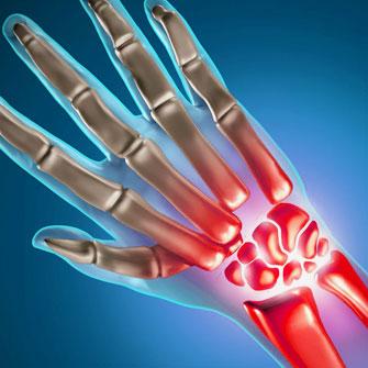 Rheumatoid Arthritis Biosimilars
