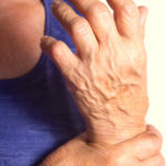 Maximizing Real-World Data: Impact of Cardiovascular Disease on Clinical Outcomes in Rheumatoid Arthritis