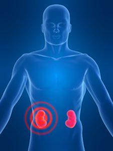 Études portant sur la néphropathie diabétique